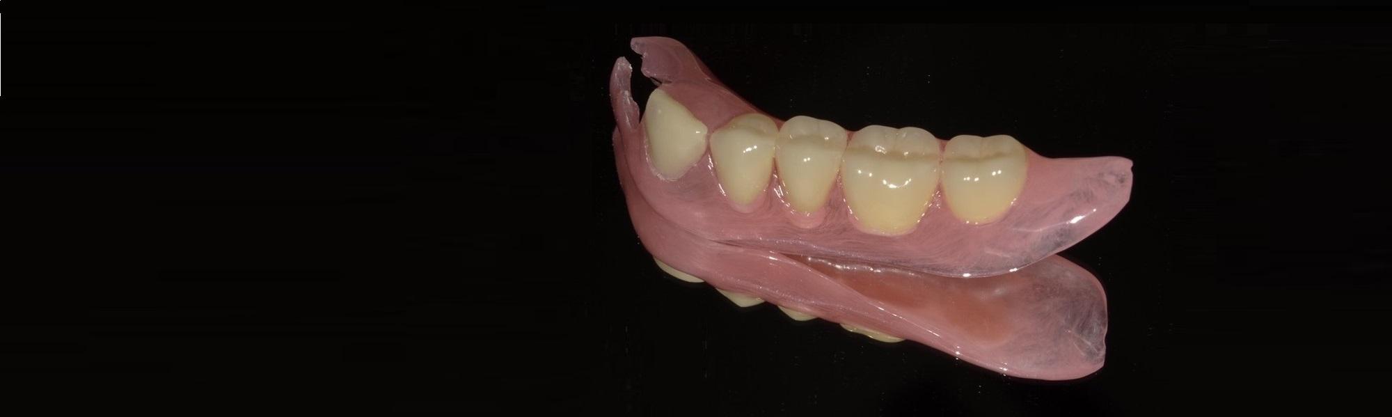 芦屋で入れ歯をお探しの方はBio Dental Clinic ASHIYAへ